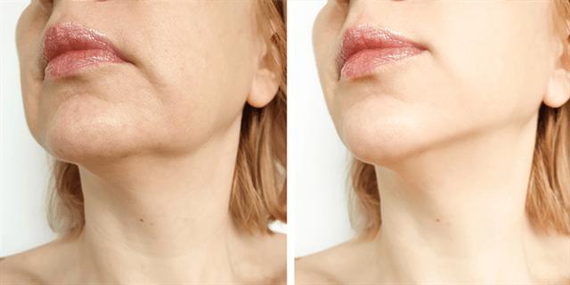 ما هي التعليمات التي ينبغي اتباعها بعد إجراء تكساس لتجميل الفك؟