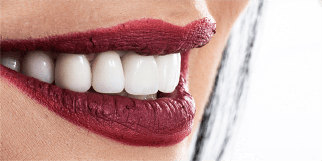How a Hollywood smile is done?