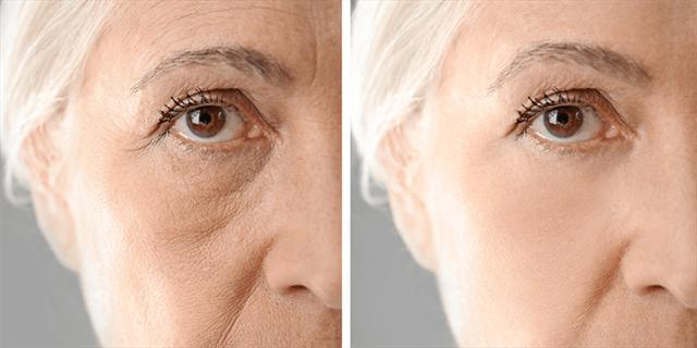 Le Botox peut être injecté à tout moment et à tout âge, mais le