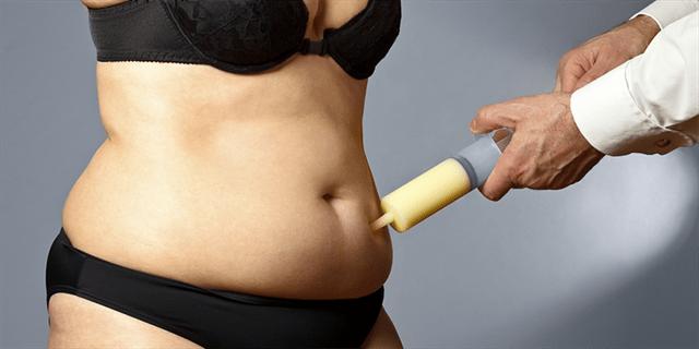 ما هي التعليمات التي ينبغي اتباعها بعد عملية شفط الدهون؟