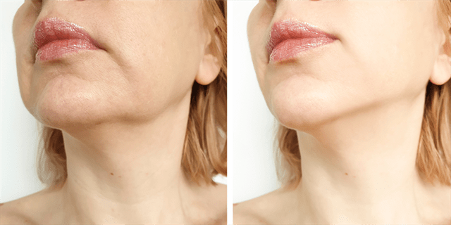 What are the post-operative instructions for Nefertiti lift?