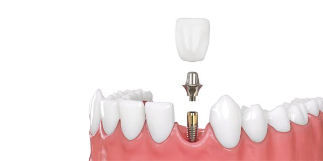 ● Immediate dental implant