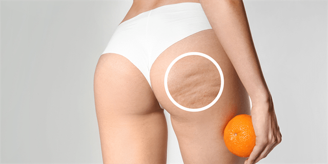 Who is the right candidate for buttock lift & reduction?