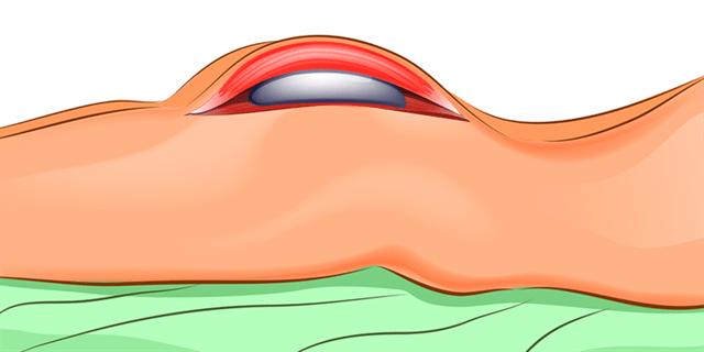 La chirurgie des fesses est une chirurgie esthétique qui sert les hommes et les femmes qui souhaitent se débarrasser de l'excès de