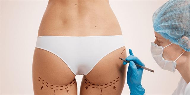 يتم إجراء عملية تصغير الأرداف بطريقتين: شفط الدهون أو التدخل الجراحي.