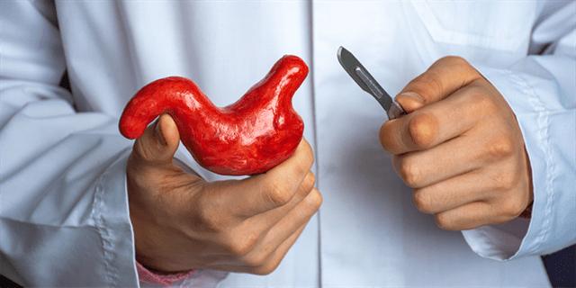 Le pontage gastrique est une intervention