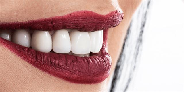 Caractéristiques du zircon en dentisterie: