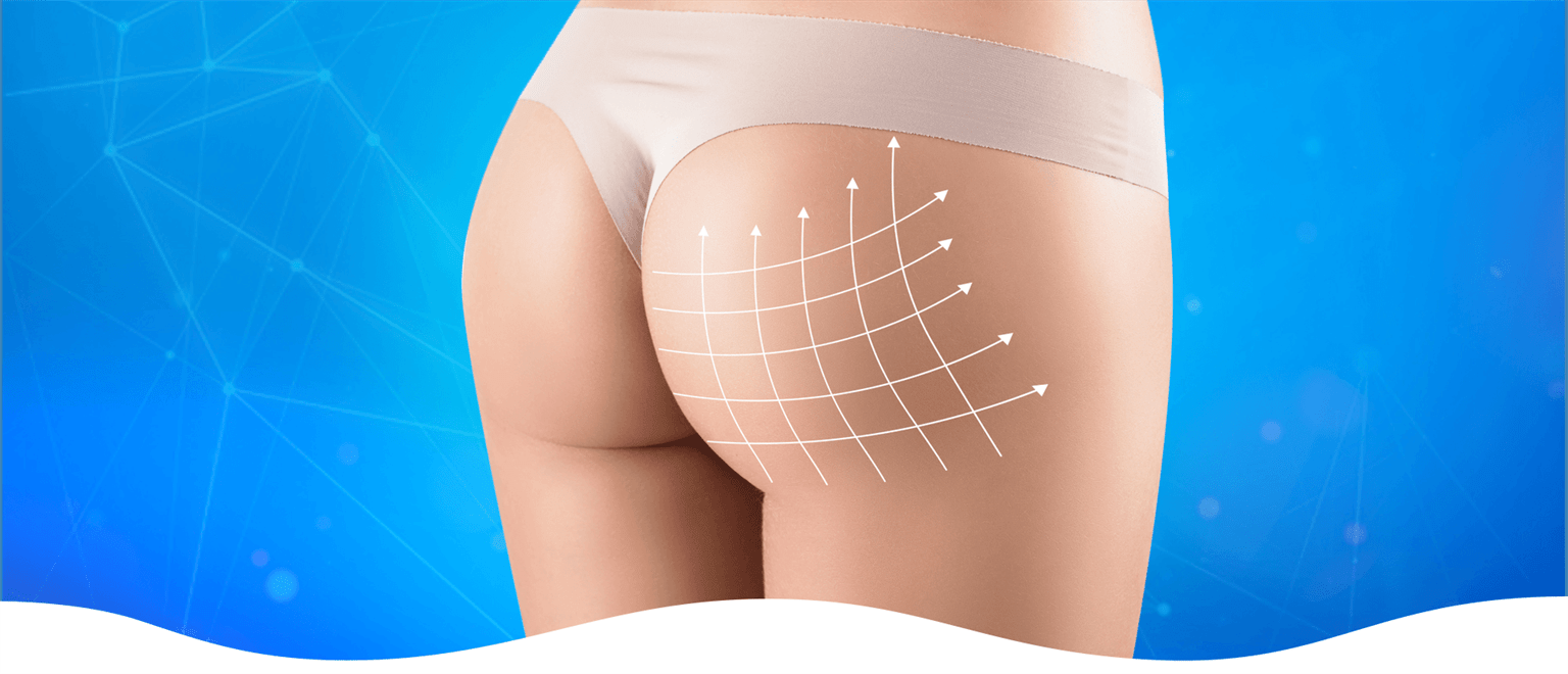 Buttock Lift & Reduction