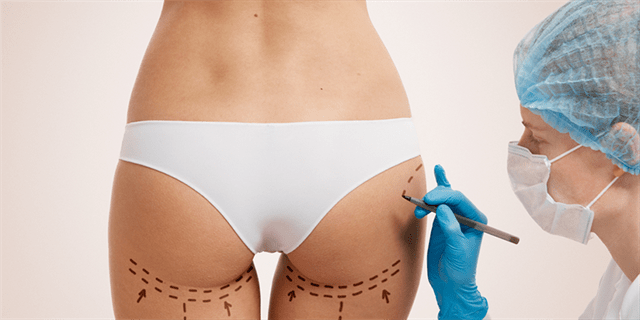 What are the post-operative instructions for buttock lift & reduction?