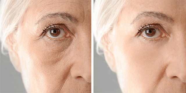 If you are the right candidate for Botox injection, you should be: