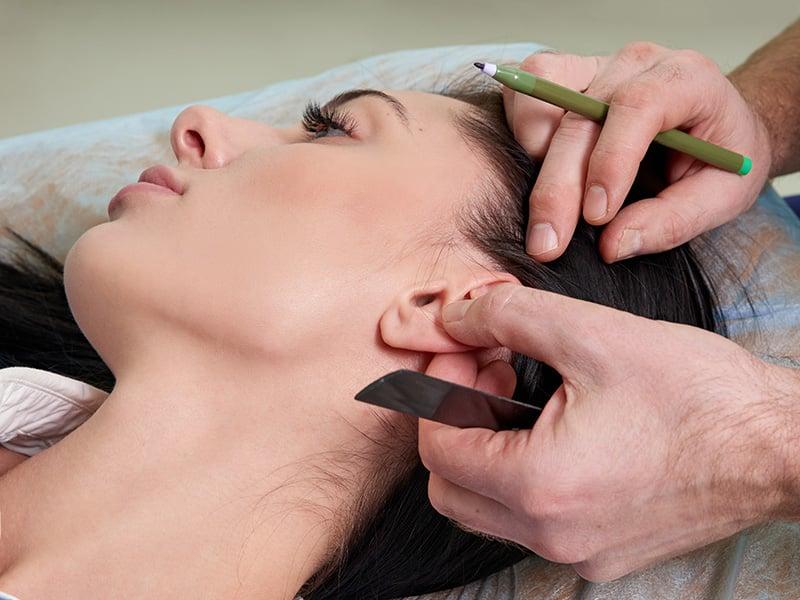 كيف تُجرى عملية تجميل الأذن؟