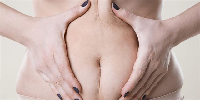 1. abdominoplastie: