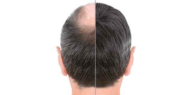 زراعة الشعر للرجال