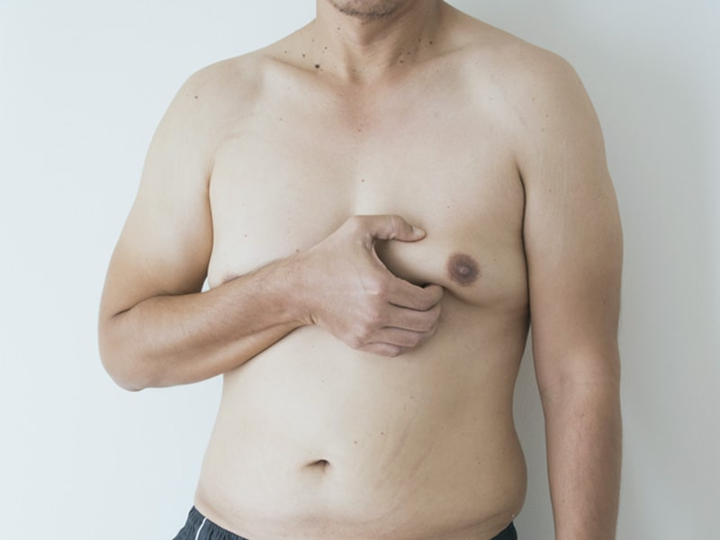 Are there any non-surgical treatment options for gynecomastia?