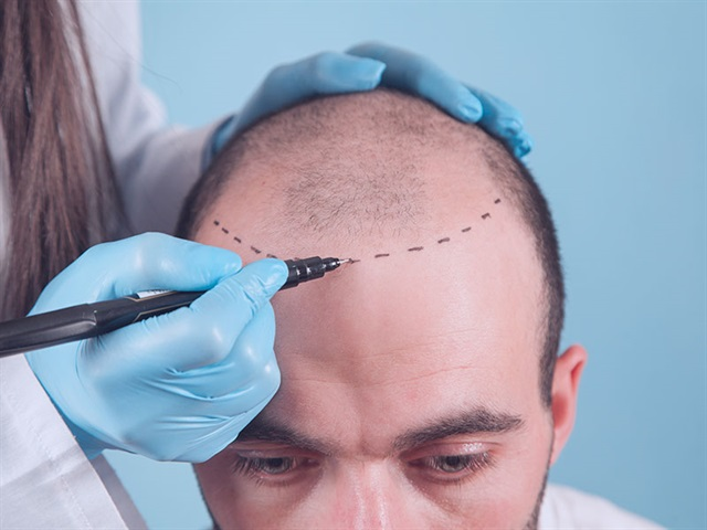 Instructions avant la procédure de greffe de cheveux