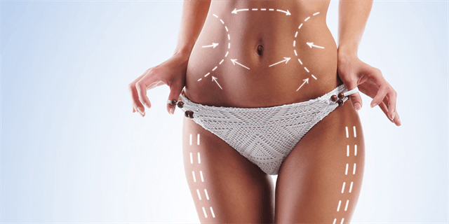 Who is the right candidate for liposuction?