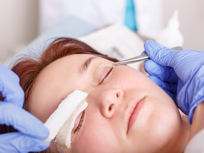 how is blepharoplasty done