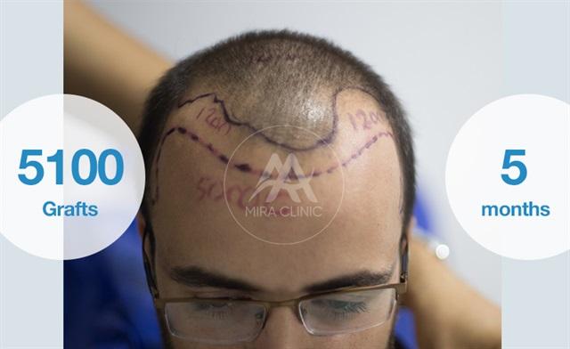 قبل و بعد عملية   زراعة الشعر