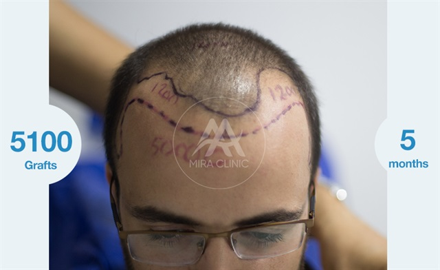 Before & After  Hair transplantation for men