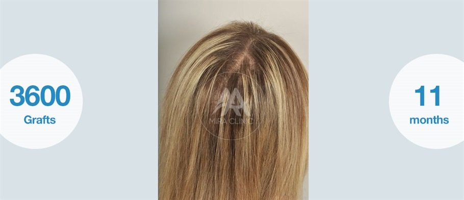 قبل و بعد عملية   زراعة الشعر للنساء