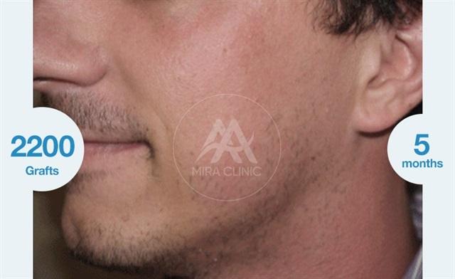Avant après  Greffe de barbe et de moustache