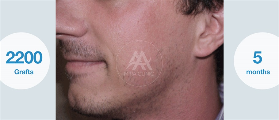Before & After  Beard and mustache transplant