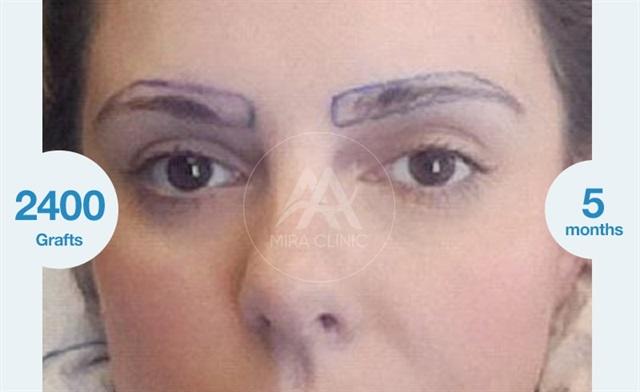 Before & After  Eyebrow restoration