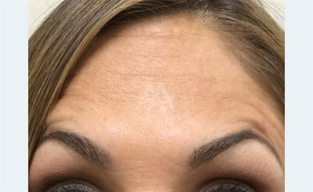 Before & After  Botox and Filler