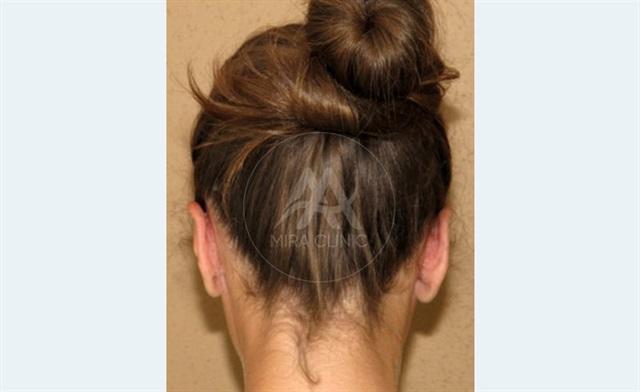 قبل و بعد عملية   تجميل الأذن