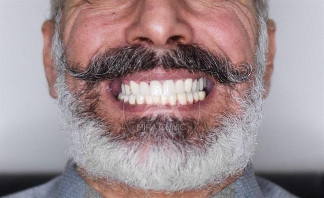 قبل و بعد عملية   تجميل الأسنان