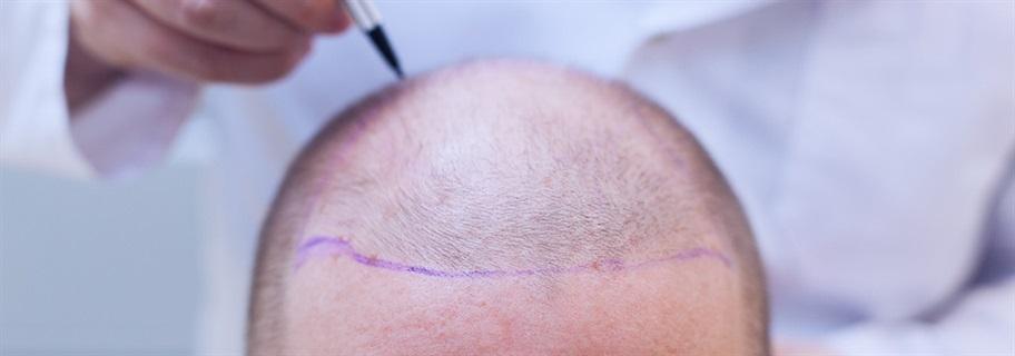 التعليمات-الواجب-مراعاتها-قبل-وبعد-زراعة-الشعر