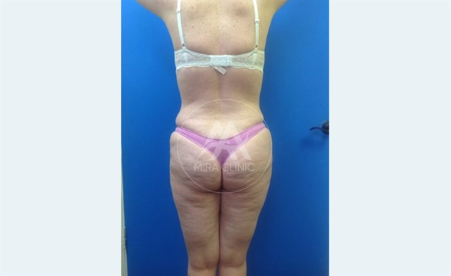 Before & After  Butt Implants