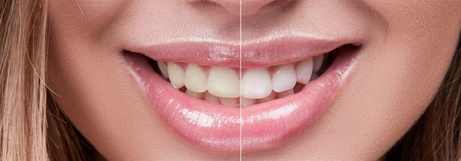 The-Cost-of-Cosmetic-Dentistry-in-Turkey