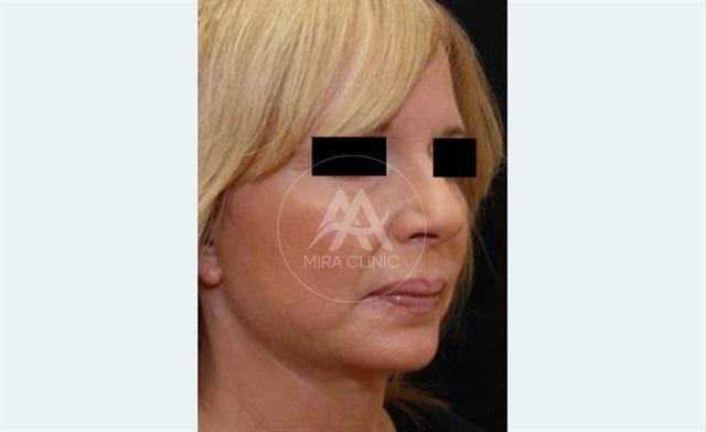 قبل و بعد عملية   شد الوجه بلخيوط الذهبية